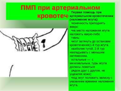 ПМП при артериальном кровотечении Первая помощь при артериальном кровотечении...