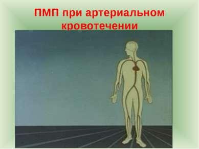 ПМП при артериальном кровотечении