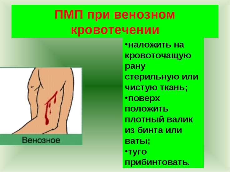 ПМП при венозном кровотечении наложить на кровоточащую рану стерильную или чи...
