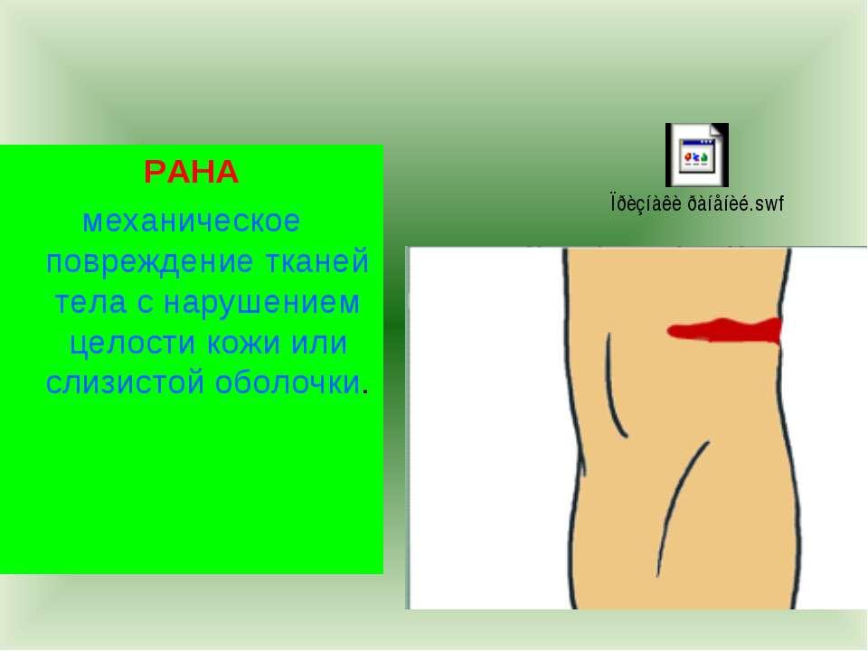 РАНА механическое повреждение тканей тела с нарушением целости кожи или слизи...