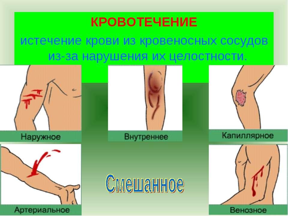 КРОВОТЕЧЕНИЕ истечение крови из кровеносных сосудов из-за нарушения их целост...