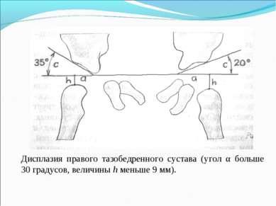 Дисплазия правого тазобедренного сустава (угол α больше 30 градусов, величины...