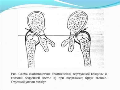Рис. Схема анатомических соотношений вертлужной впадины и головки бедренной к...