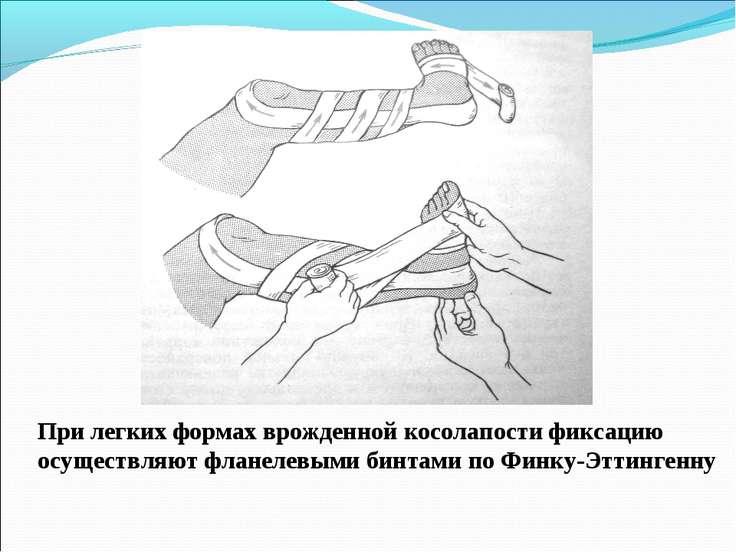 При легких формах врожденной косолапости фиксацию осуществляют фланелевыми би...