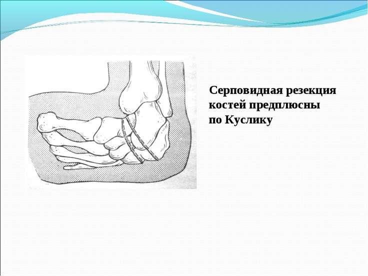 Серповидная резекция костей предплюсны по Куслику