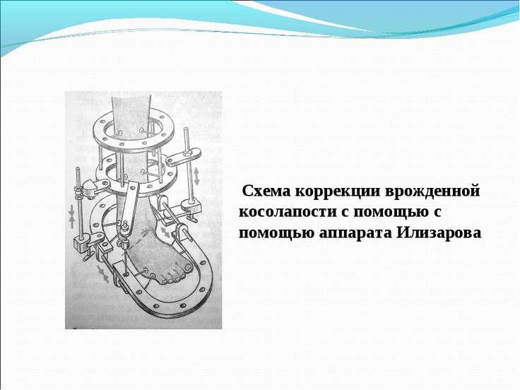 Схема коррекции врожденной косолапости с помощью с помощью аппарата Илизарова