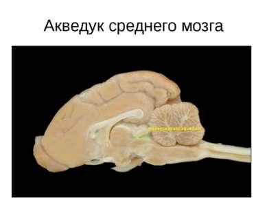 Акведук среднего мозга