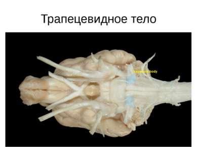 Трапецевидное тело