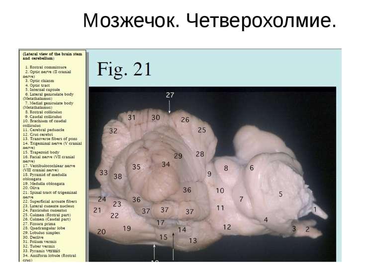 Мозжечок. Четверохолмие.