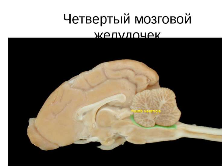 Четвертый мозговой желудочек