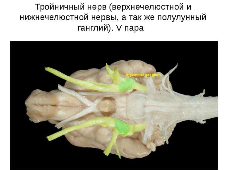 Тройничный нерв (верхнечелюстной и нижнечелюстной нервы, а так же полулунный ...