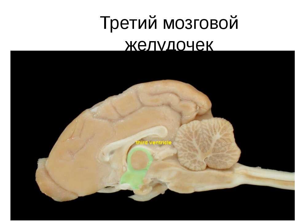 Третий мозговой желудочек
