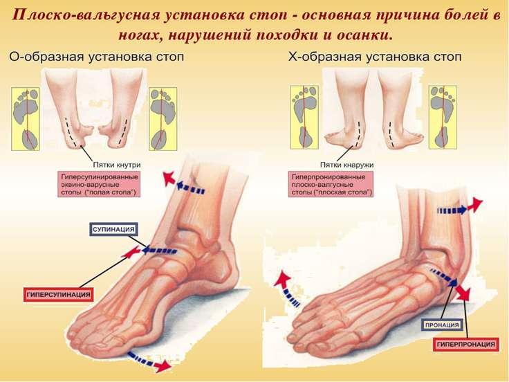 Плоско-вальгусная установка стоп - основная причина болей в ногах, нарушений ...