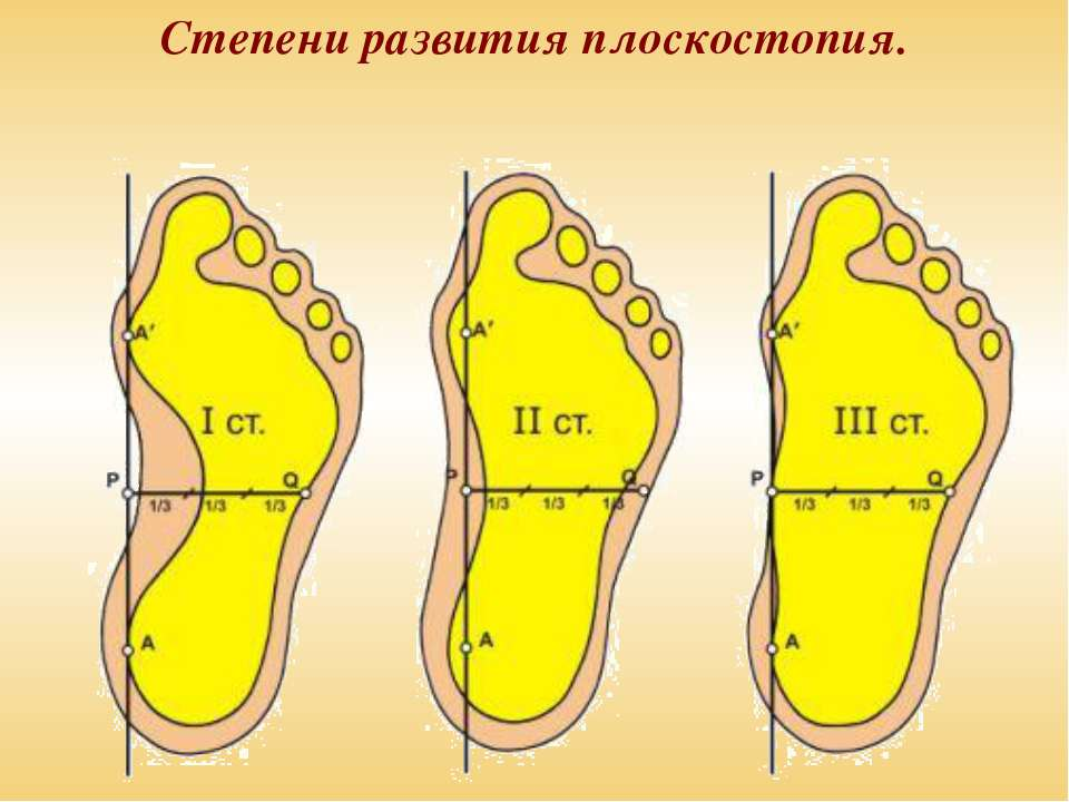 Степени развития плоскостопия.