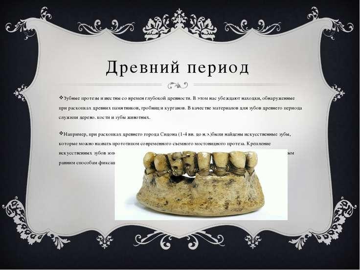 Древний период Зубные протезы известны со времен глубокой древности. В этом н...