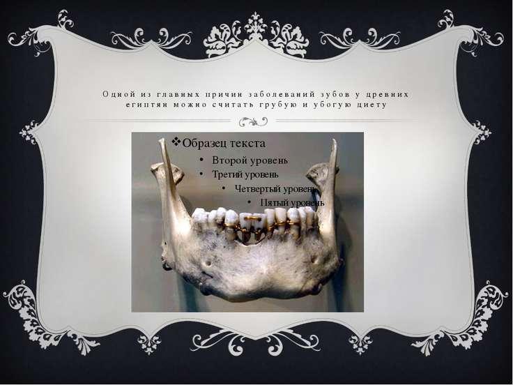 Одной из главных причин заболеваний зубов у древних египтян можно считать гру...