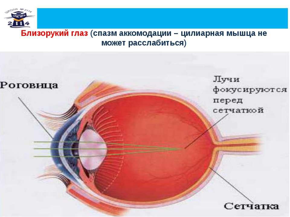 Близорукий глаз (спазм аккомодации – цилиарная мышца не может расслабиться)