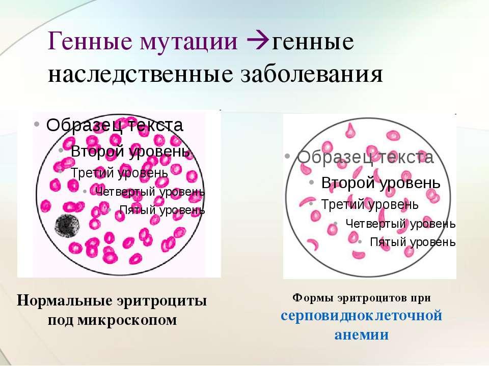 Генные мутации генные наследственные заболевания Нормальные эритроциты под ми...