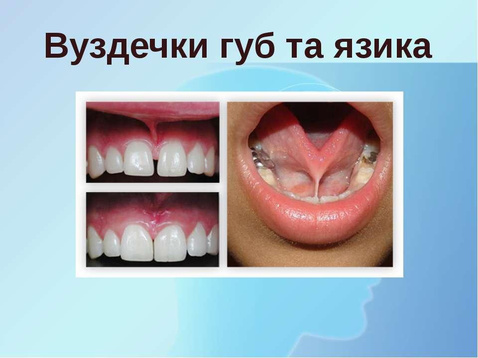 Вуздечки губ та язика