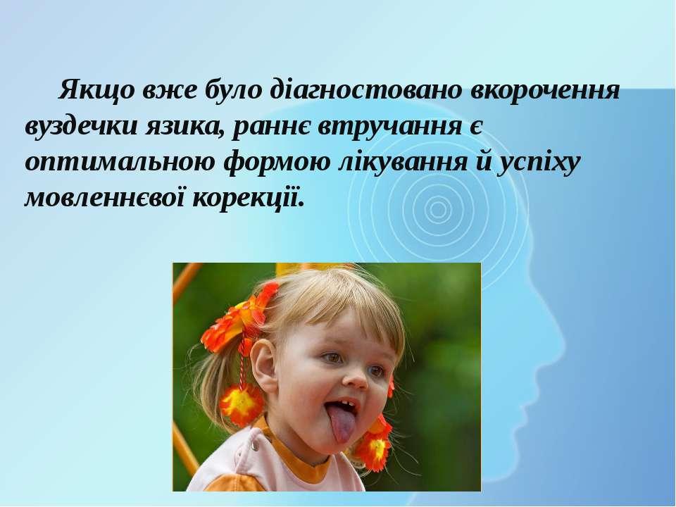 Якщо вже було діагностовано вкорочення вуздечки язика, раннє втручання є опти...