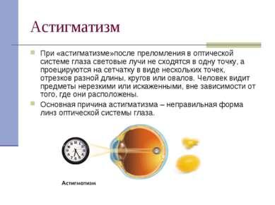 Астигматизм При «астигматизме»после преломления в оптической системе глаза св...