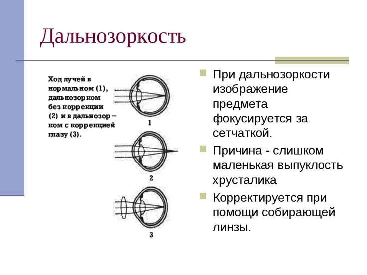 Дальнозоркость При дальнозоркости изображение предмета фокусируется за сетчат...