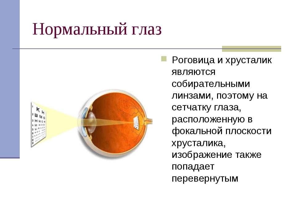 Нормальный глаз Роговица и хрусталик являются собирательными линзами, поэтому...