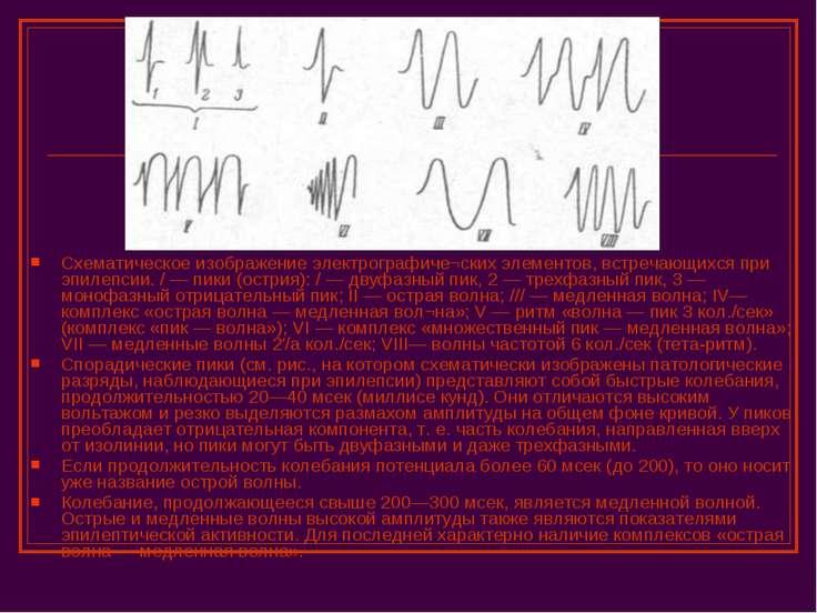 Схематическое изображение электрографиче¬ских элементов, встречающихся при эп...