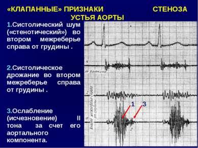 «КЛАПАННЫЕ» ПРИЗНАКИ СТЕНОЗА УСТЬЯ АОРТЫ 1 3 1.Систолический шум («стенотичес...