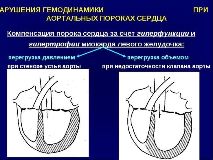 НАРУШЕНИЯ ГЕМОДИНАМИКИ ПРИ АОРТАЛЬНЫХ ПОРОКАХ СЕРДЦА Компенсация порока сердц...