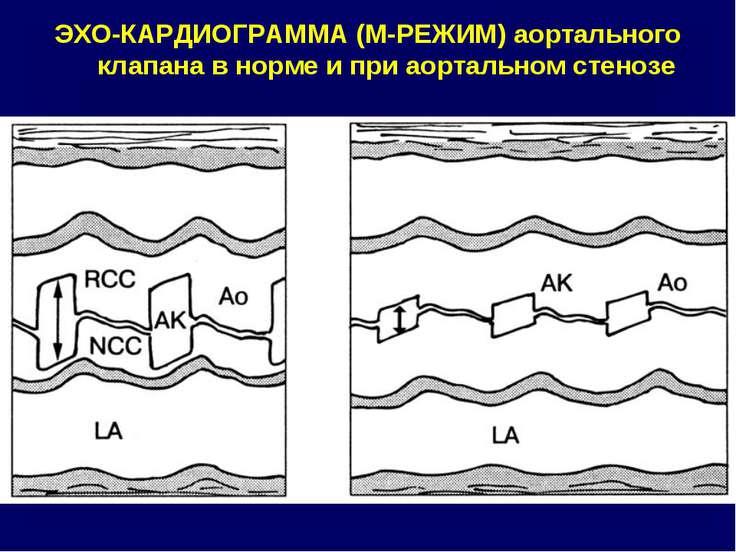 ЭХО-КАРДИОГРАММА (М-РЕЖИМ) аортального клапана в норме и при аортальном стенозе