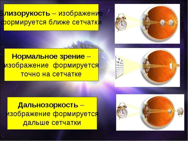 Близорукость – изображение формируется ближе сетчатки Нормальное зрение – изо...