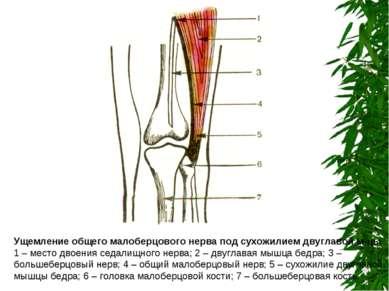 Ущемление общего малоберцового нерва под сухожилием двуглавой м-цы 1 – место ...
