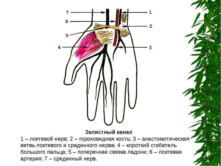 Запястный канал 1 – локтевой нерв; 2 – гороховидная кость; 3 – анастомотическ...