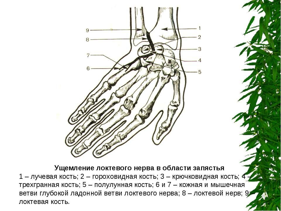 Ущемление локтевого нерва в области запястья 1 – лучевая кость; 2 – гороховид...