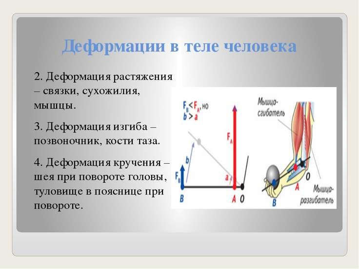 Деформации в теле человека 2. Деформация растяжения – связки, сухожилия, мышц...