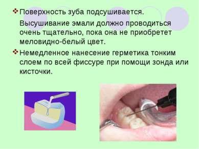 Поверхность зуба подсушивается. Высушивание эмали должно проводиться очень тщ...