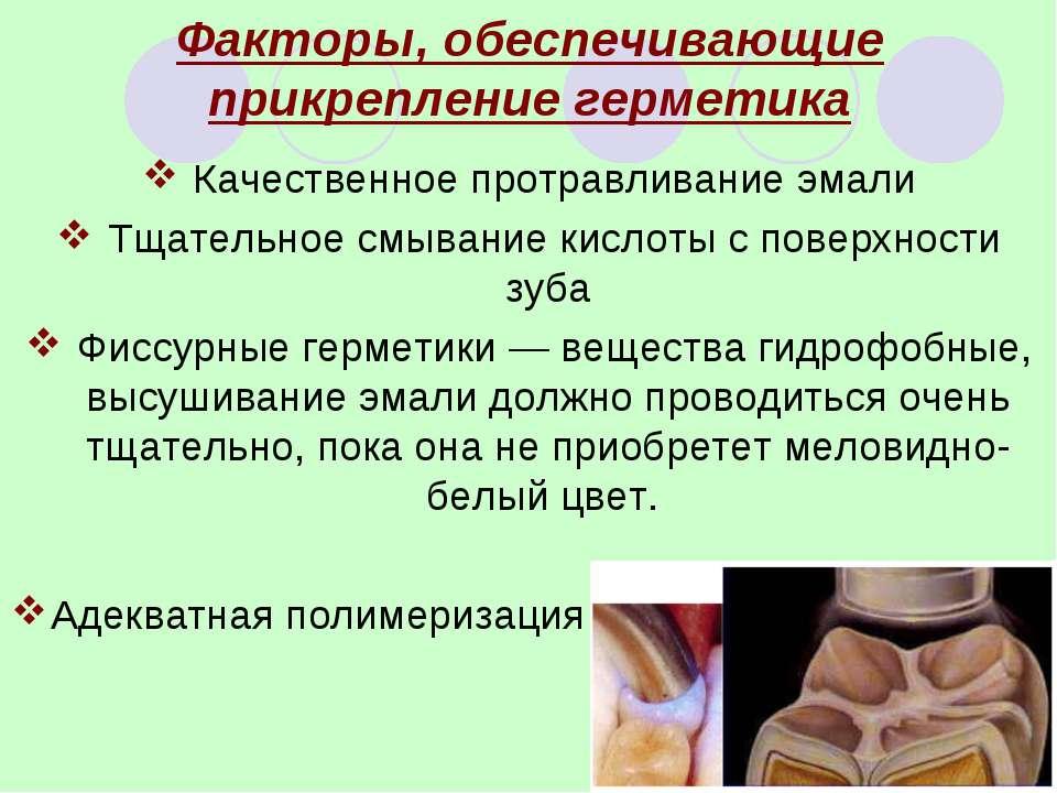 Факторы, обеспечивающие прикрепление герметика Качественное протравливание эм...