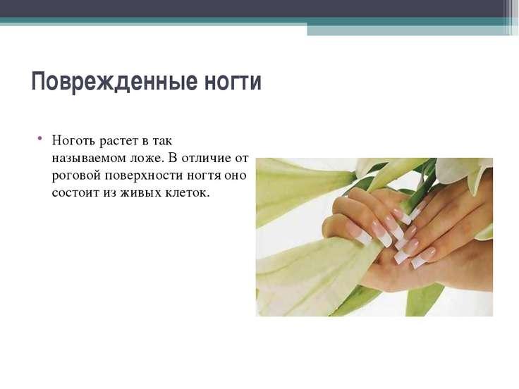 Поврежденные ногти Ноготь растет в так называемом ложе. В отличие от роговой ...