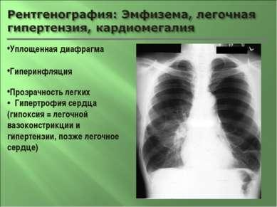 Уплощенная диафрагма Гиперинфляция Прозрачность легких Гипертрофия сердца (ги...