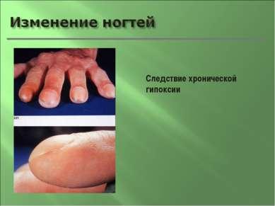 Следствие хронической гипоксии