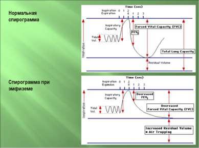 Нормальная спирограмма Спирограмма при эмфиземе