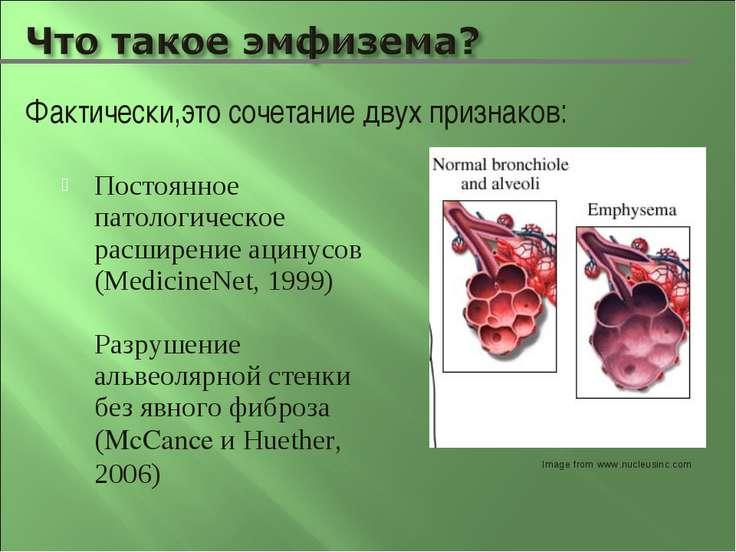 Постоянное патологическое расширение ацинусов (MedicineNet, 1999) Разрушение ...