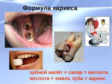 Формула кариеса зубной налёт + сахар = кислота кислота + эмаль зуба = кариес