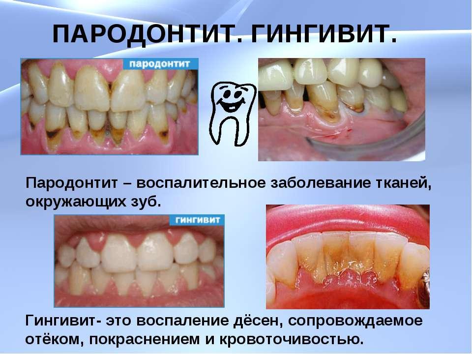 ПАРОДОНТИТ. ГИНГИВИТ. Пародонтит – воспалительное заболевание тканей, окружаю...