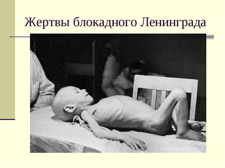 Жертвы блокадного Ленинграда
