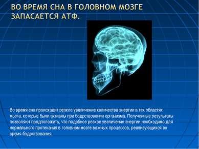 Во время сна происходит резкое увеличение количества энергии в тех областях м...