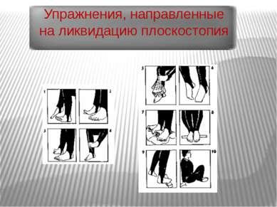 Упражнения, направленные на ликвидацию плоскостопия