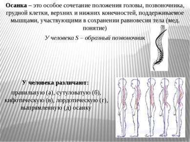 Осанка – это особое сочетание положения головы, позвоночника, грудной клетки,...