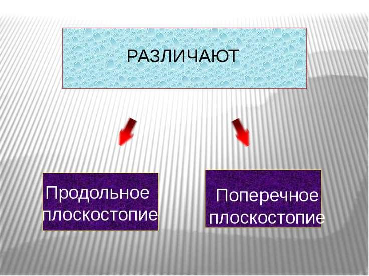 Продольное плоскостопие Поперечное плоскостопие РАЗЛИЧАЮТ